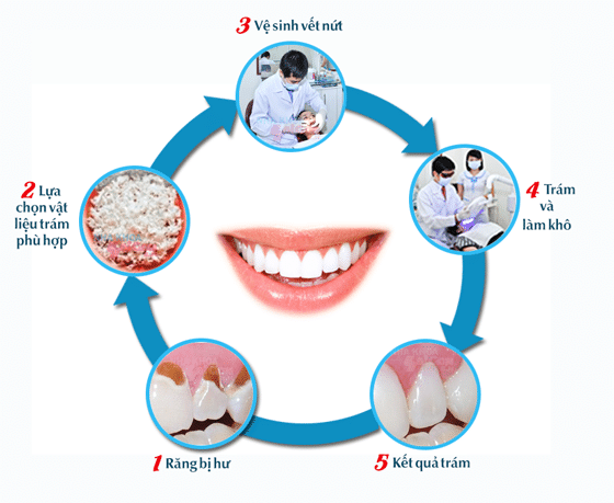 Hiểu rõ bản chất và hiệu quả của phương pháp trám răng