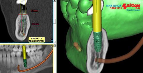 Phần mềm Simplant - để thực hiện phẫu thuật ảo bằng hình ảnh 3D trên máy tính, giúp bác sĩ chọn vị trí thích hợp nhất để đặt implant và xác định kích cỡ Implant phù hợp