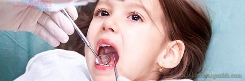 Trám sealant phòng ngừa sâu răng cho trẻ