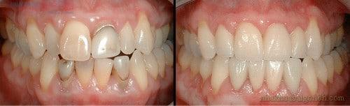 Giải pháp cho hàm răng mọc lệch, nhiễm màu