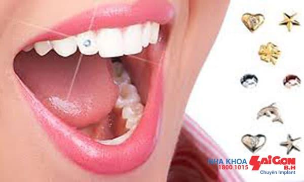 Quy trình đính đá vào răng diễn ra như thế nào?