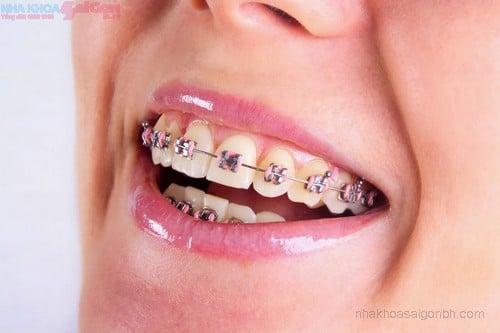 Niềng răng mắc cài – Giải pháp lấy lại nụ cười tự tin