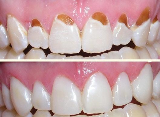 Chi phí trám răng sâu an toàn hết bao nhiêu tiền?