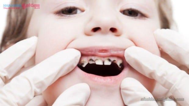 Vì sao phải phòng ngừa sâu răng ở trẻ em?