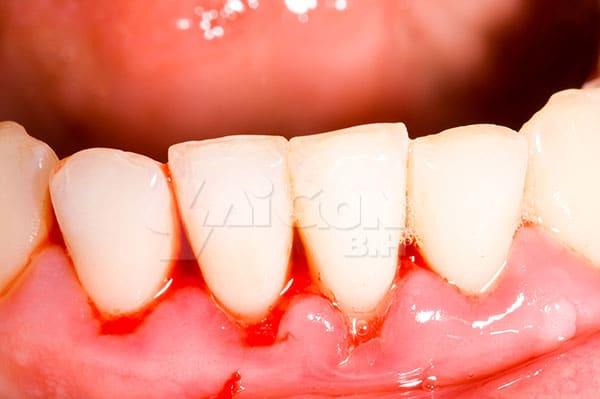 Đừng nên xem thường việc chảy máu khi chải răng!