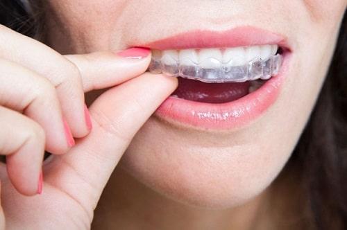 Các loại hàm duy trì dùng trong niềng răng