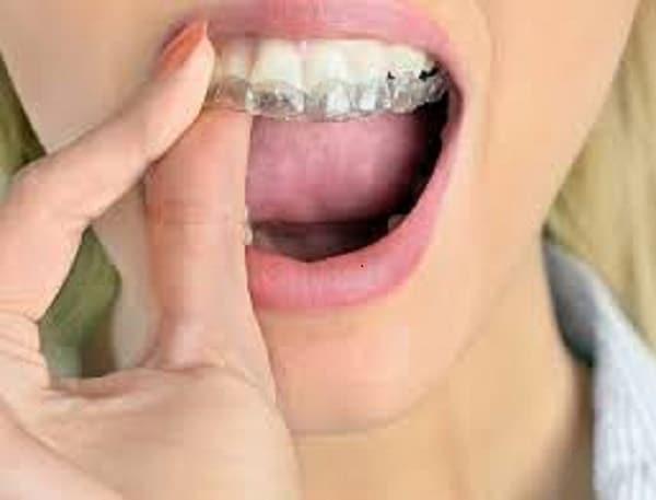 Hàm duy trì có hữu ích gì khi niềng răng