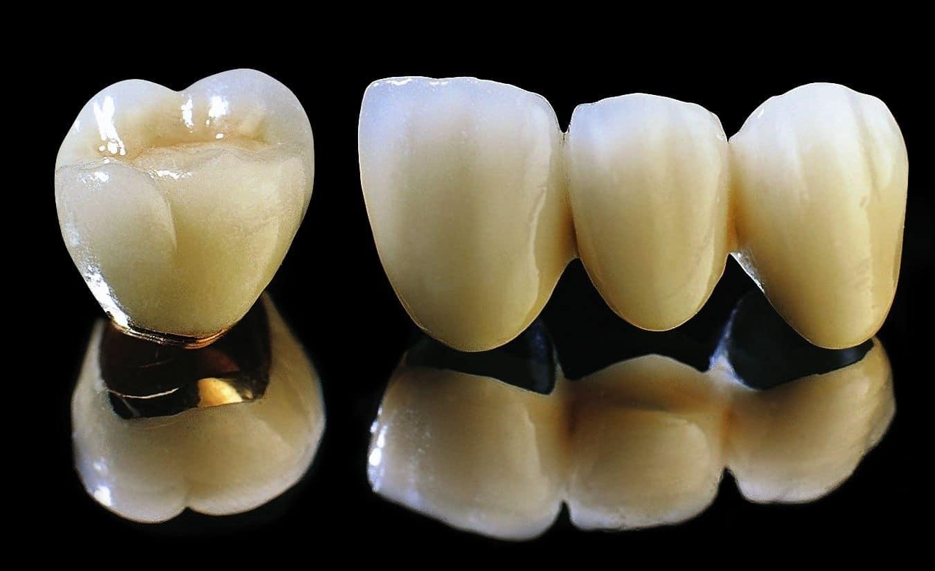 Phục hình với răng sứ kim loại thường