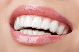 Niềng răng không mắc cài có ưu điểm gì?