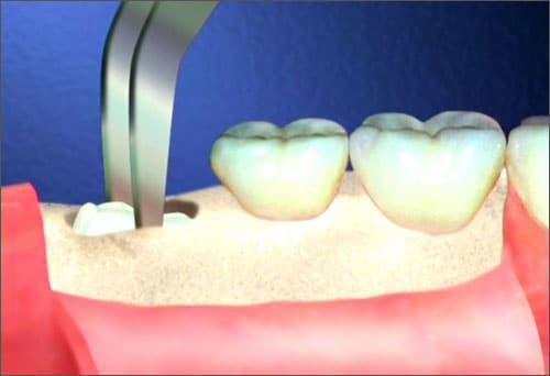 Chi phí nhổ răng cấm và số 7 cùng lúc