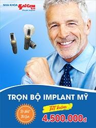 http://nhakhoasaigonbh.com/wp-content/uploads/2016/07/implant188x250.jpg