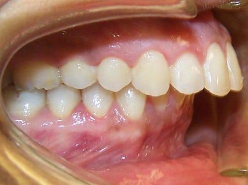 Bảng giá niềng răng mới nhất tại nha khoa Sài Gòn B.H