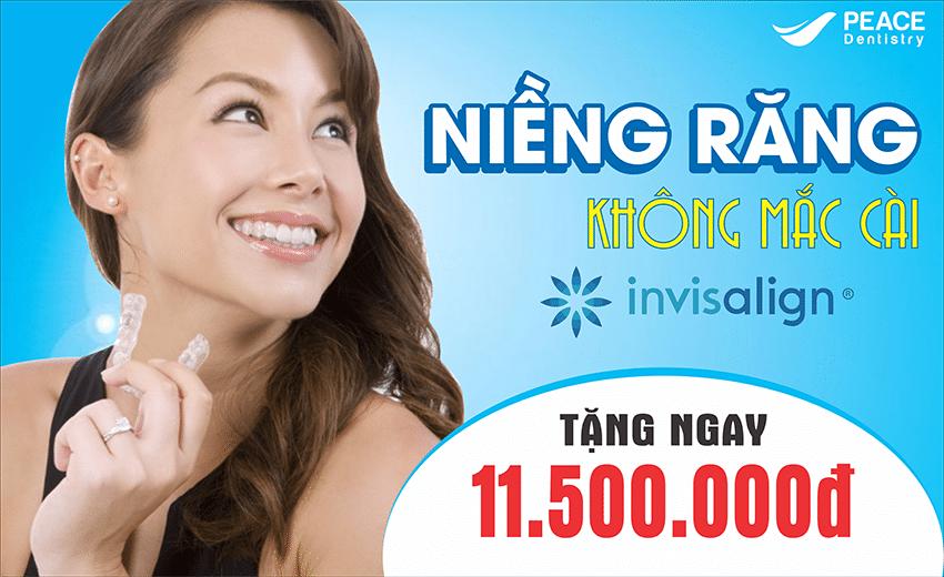Niềng răng invisalign – Thay đổi nụ cười thay đổi cuộc sống