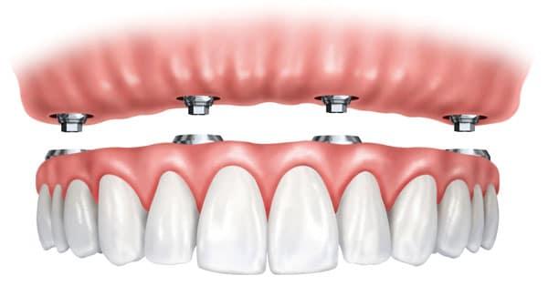 Ưu điểm của phương pháp trồng răng giả cả hàm