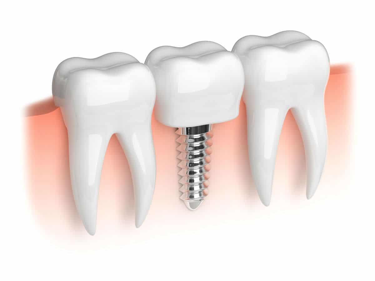 Thoải mái liên hoan sau cấy ghép mini implant