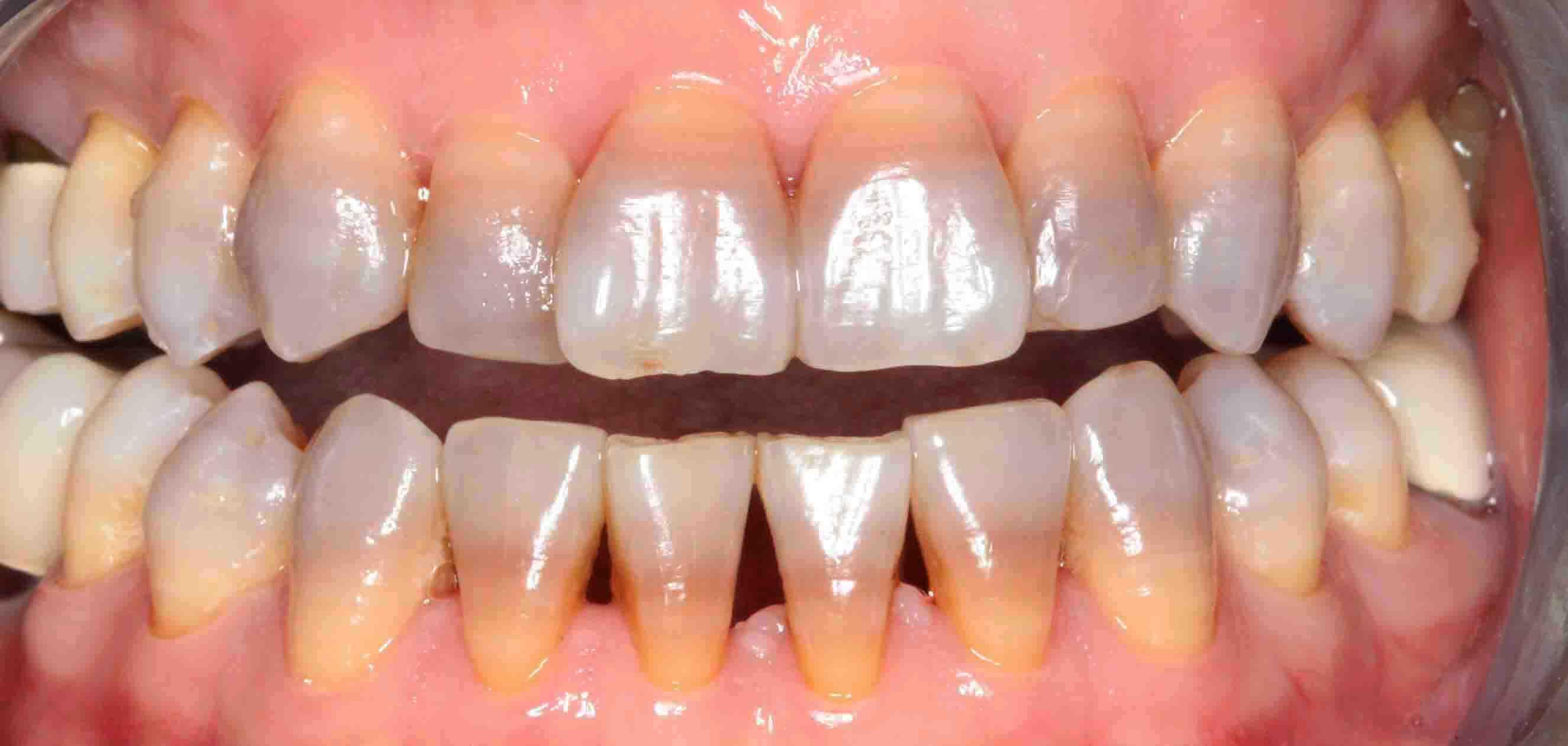 Bọc răng sứ cho răng nhiễm màu