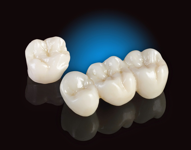Cập nhật trồng răng sứ giá bao nhiêu hiện nay