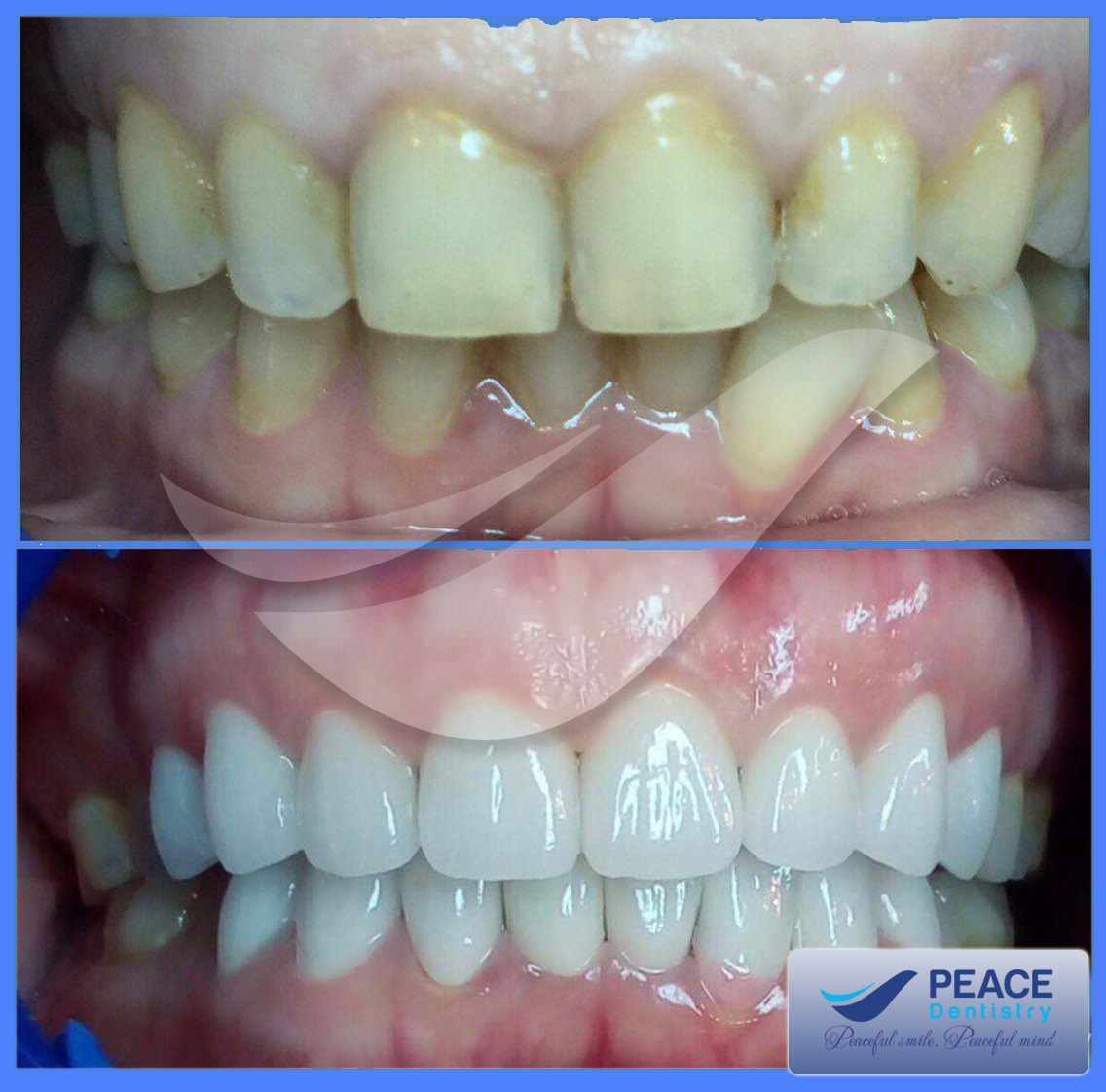 hình ảnh trước sau bọc răng sứ