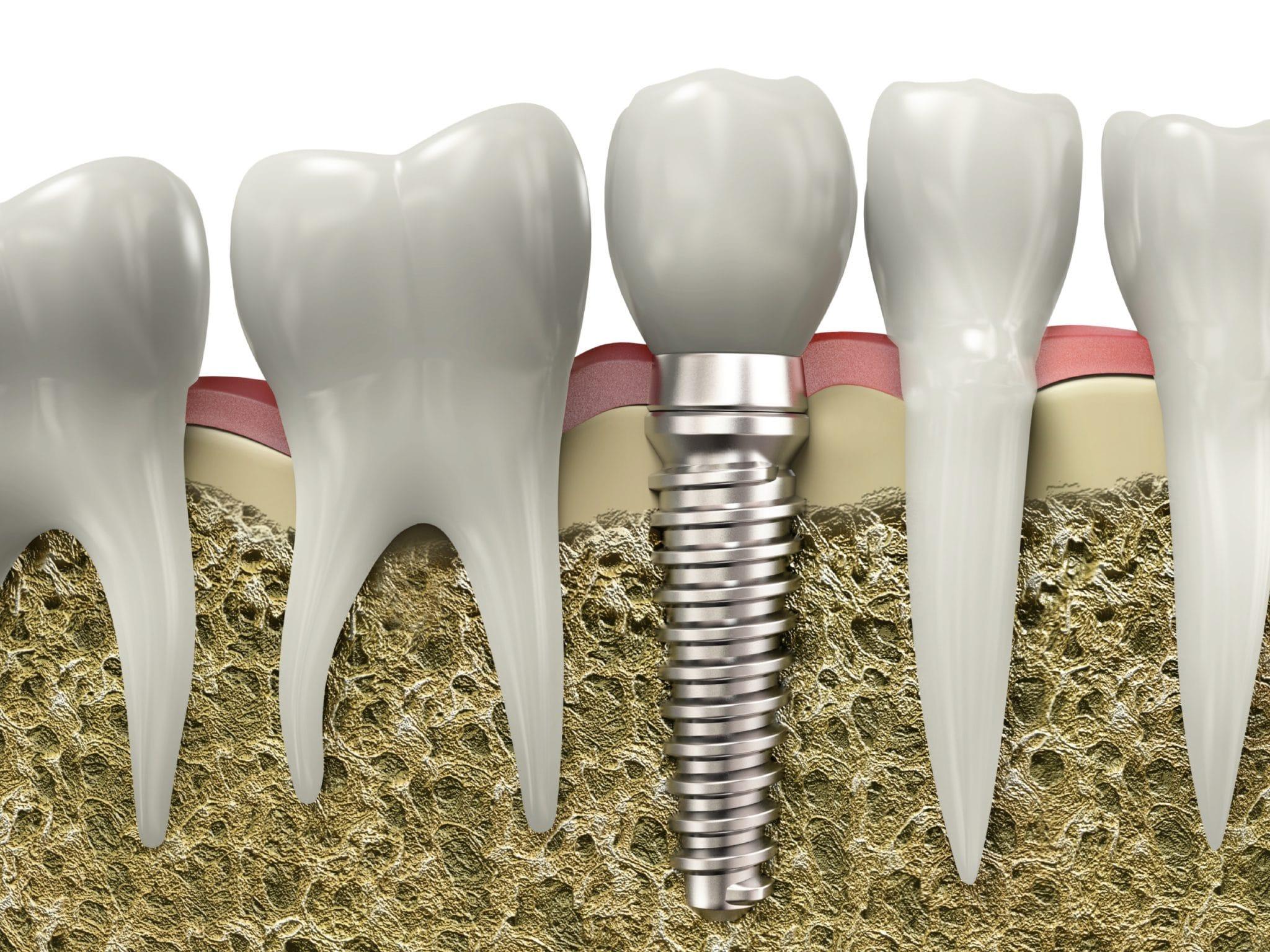 Bảng giá cấy ghép răng implant tham khảo