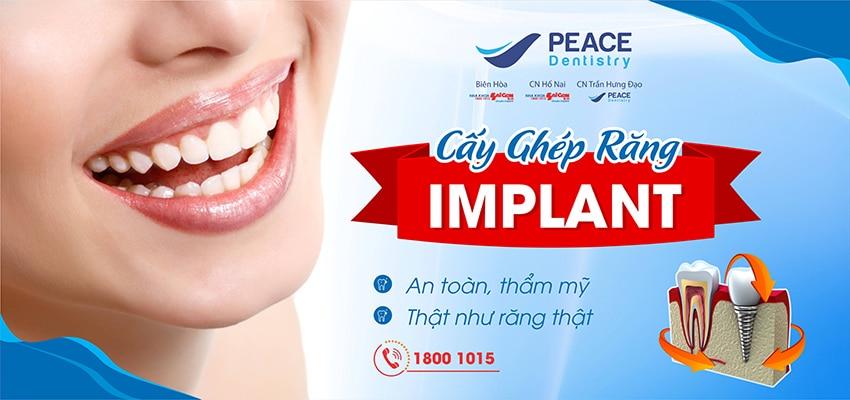 Trồng răng implant giải pháp phục hinh răng hoàn hảo