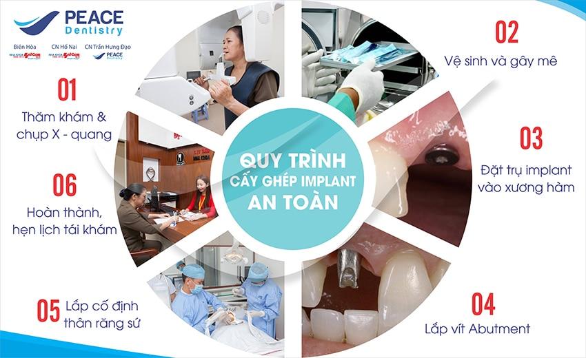 Quy trình trồng răng implant tại Nha Khoa Sài Gòn B.H