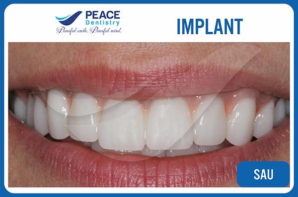 hình ảnh sau khi trồng răng implant