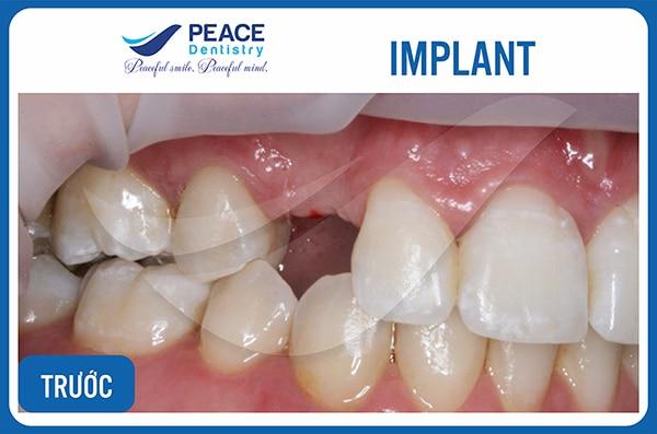 Gợi ý cách trồng răng giả ở Biên Hòa giá rẻ