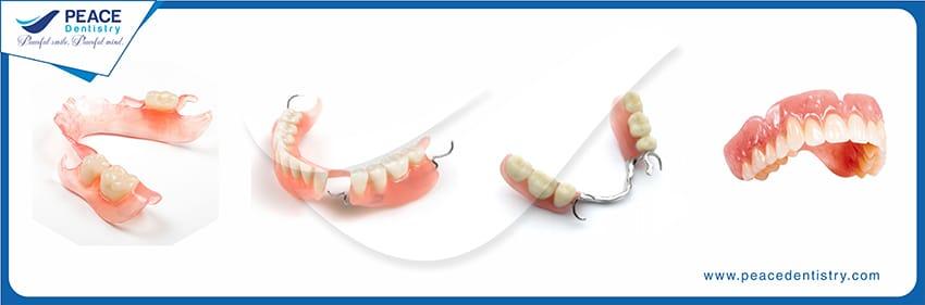 Tư vấn trồng răng sứ mất bao lâu với hàm tháo lắp?