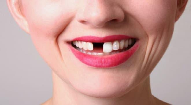 Trường hợp nào nên đi trồng răng sứ khi răng bị mất?