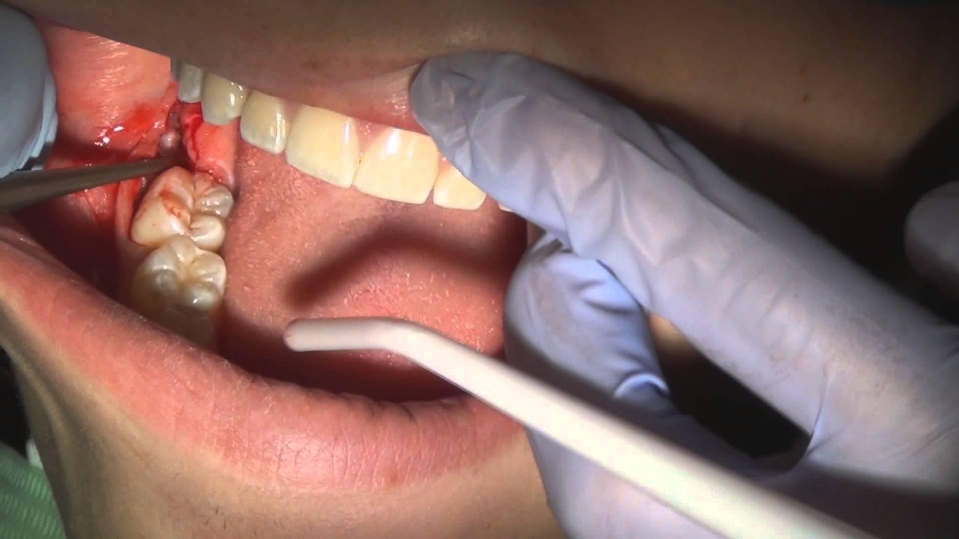 Không còn cảm giác đau đớn khi chích thuốc tê nhổ răng