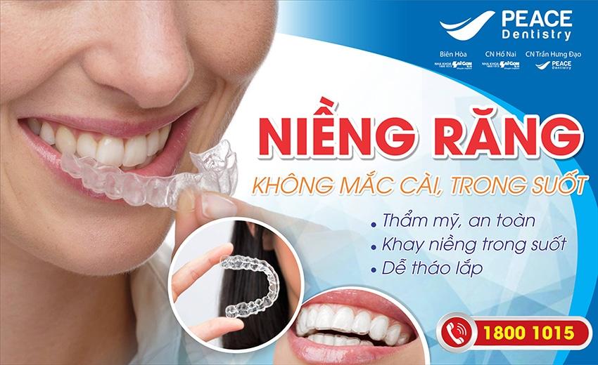 chỉnh nha niềng răng không mắc cài