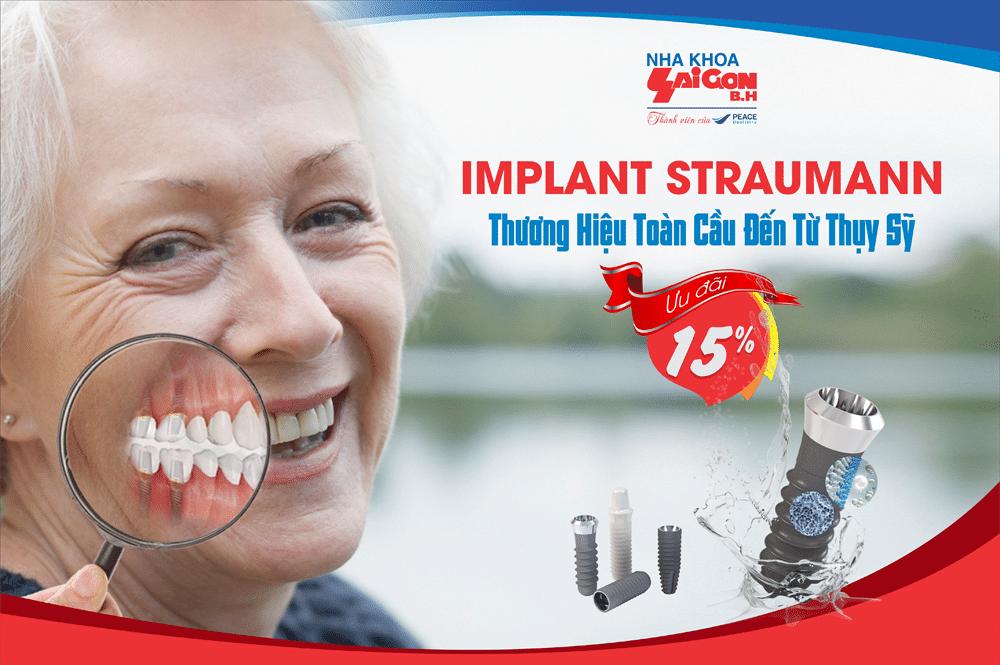 Bảo hành trọn đời cho Implant Straumann