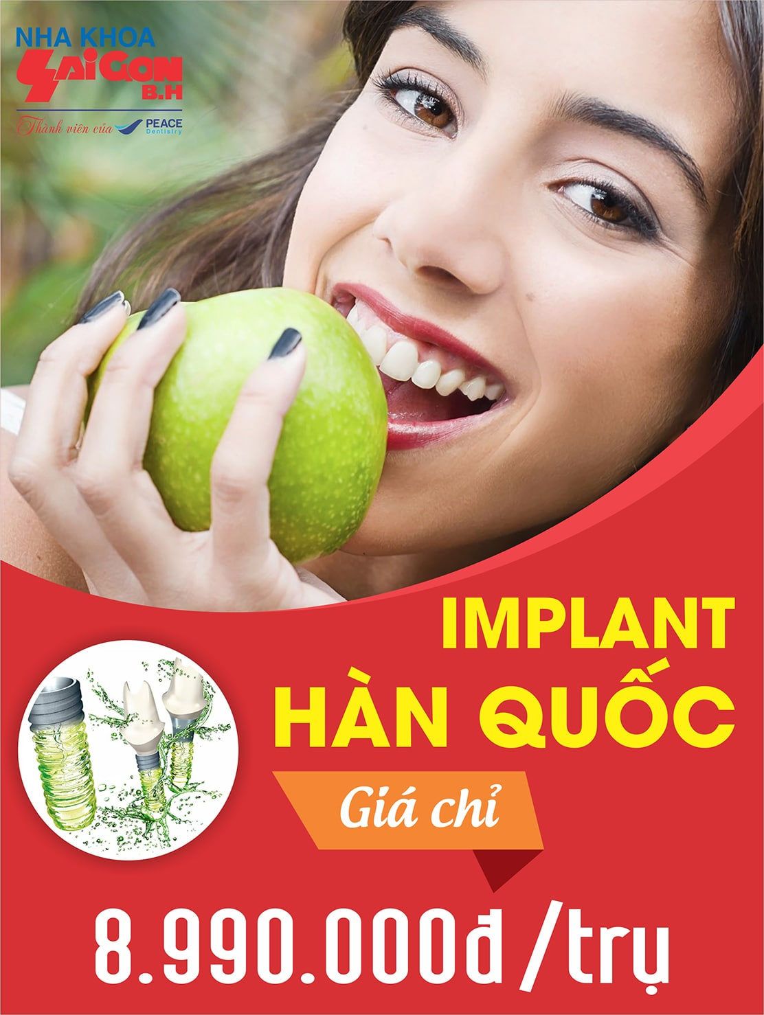 http://nhakhoasaigonbh.com/wp-content/uploads/2018/03/side_chinh_Implant_HQ.jpg