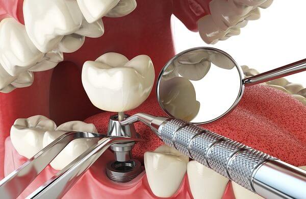Tại sao trồng răng Implant đang được ưa chuộng trong nha khoa?