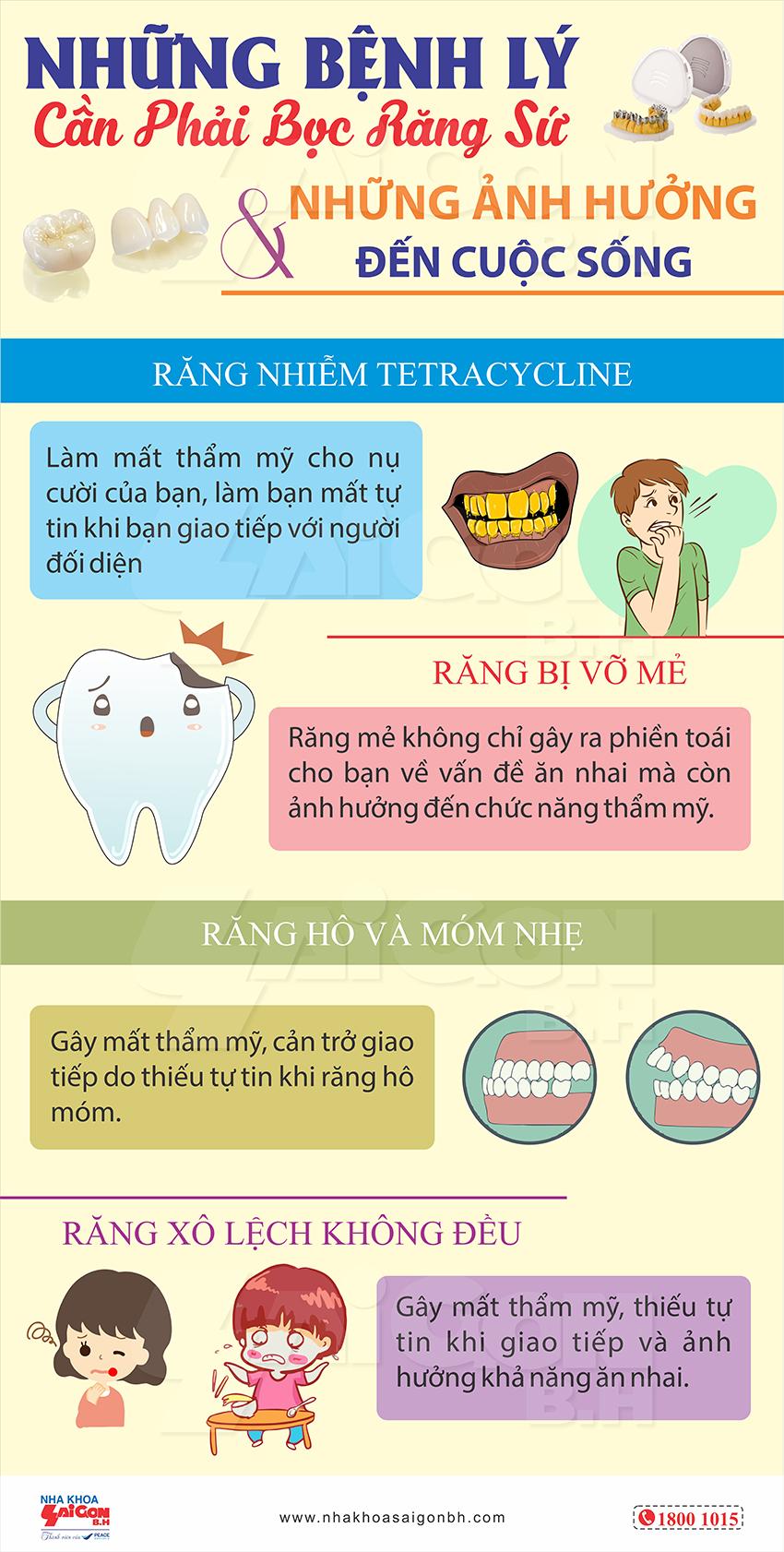 Những bệnh lý cần phải bọc răng sứ và những ảnh hưởng đến cuộc sống