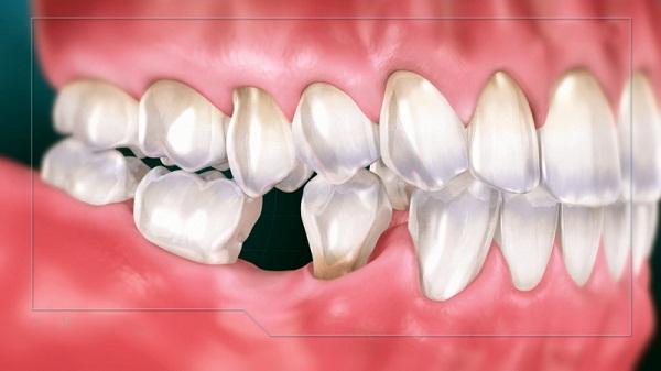 Trồng răng ở Biên Hòa giá bao nhiêu với răng số 6
