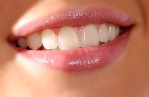Kết quả của việc trồng răng sứ là gì?