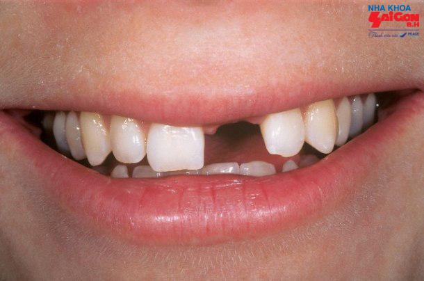 Cần lưu ý những gì khi có nhu cầu trồng răng cửa?