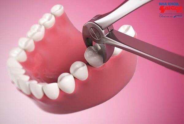 Có nên trồng răng số 7 ngay khi nó mới bị hỏng không?