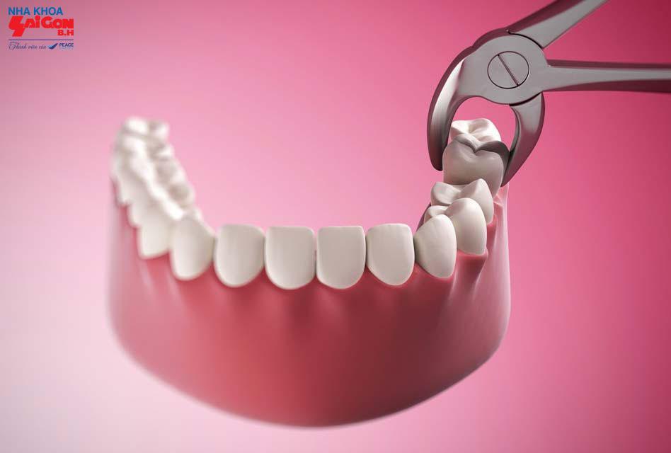 Những vấn đề thường gặp sau khi thực hiện nhổ răng cùng