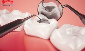 Quy trình trám răng mất bao lâu thì hoàn tất?