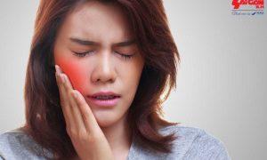 Mẹo giúp bạn xua tan cơn nhức răng trước khi đi nha sĩ