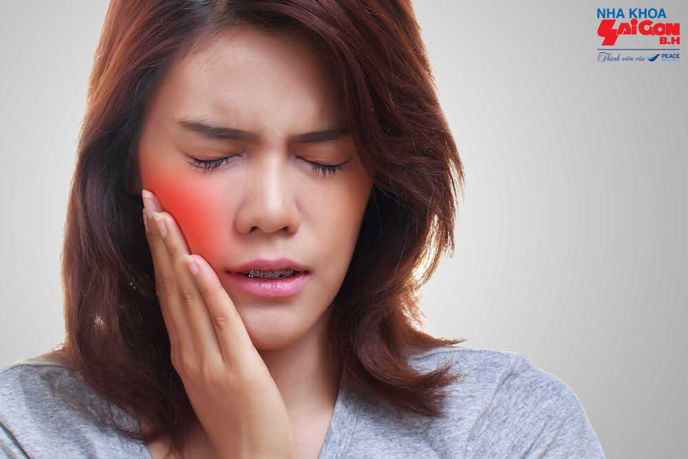 Nhức răng phải làm sao để chữa trị triệt để nhanh chóng