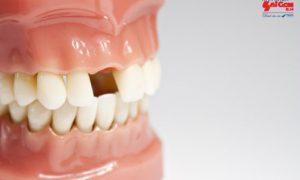 Thực hiện trồng răng cửa mất bao lâu là hoàn tất