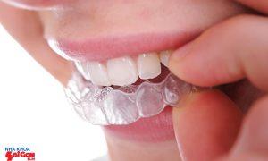 Niềng răng giá bao nhiêu và câu trả lời cho bạn