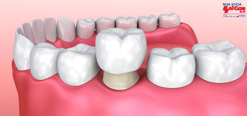 Bọc răng sứ mất bao lâu mới hoàn thành