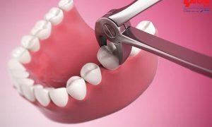 Niềng răng có cần phải nhổ bỏ răng hay không