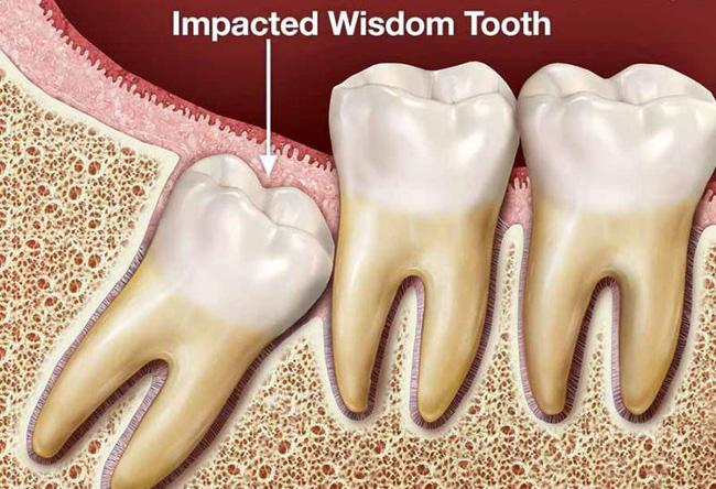 Nguyên nhân và cách điều trị sưng nướu răng trong cùng