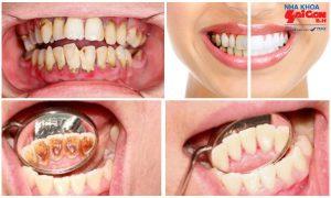 Quy trình lấy cao răng tại Nha Khoa Sài Gòn B.H