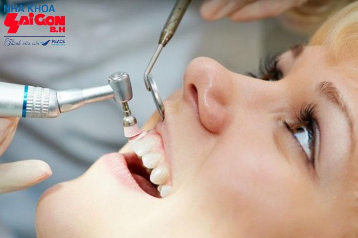 Cùng tìm hiểu các phương pháp trám răng sâu tốt nhất hiện nay